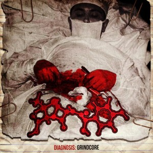 AMOCLEN Diagnosis: Grindcore CD